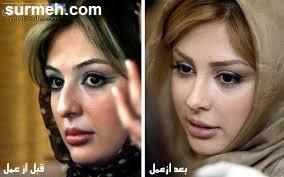 عکس های جنجالی نیوشا ضیغمی قبل و بعد از عمل ریبایی