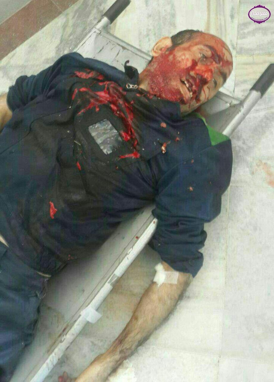 عکس جسد شهیدای حمله تروریستی حرم امام خمینی (ره)